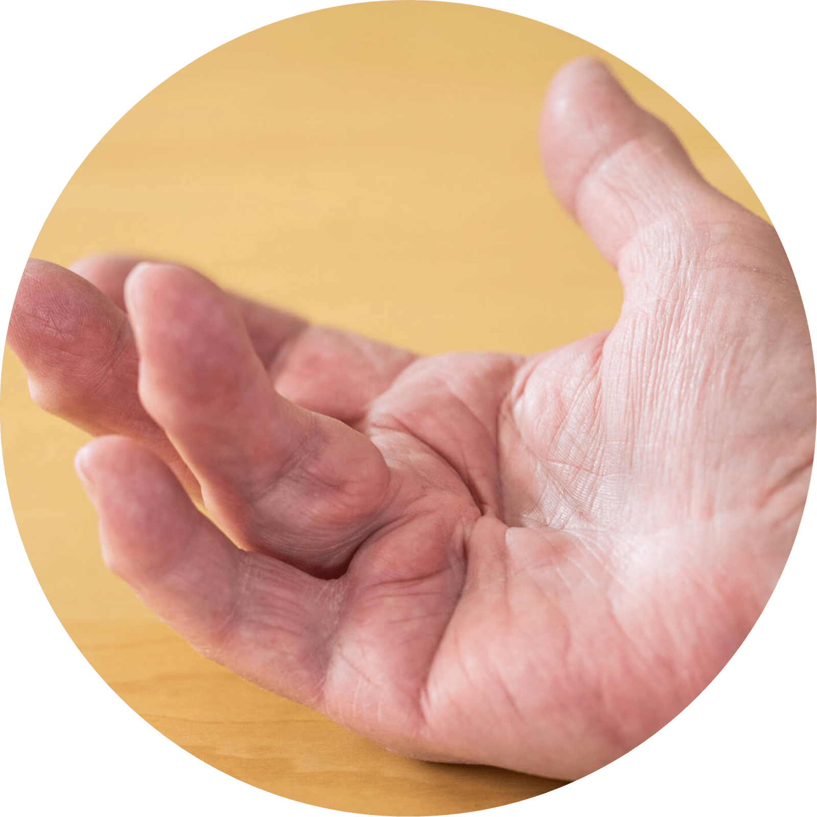 1502Dupuytren's Contracture Surgery